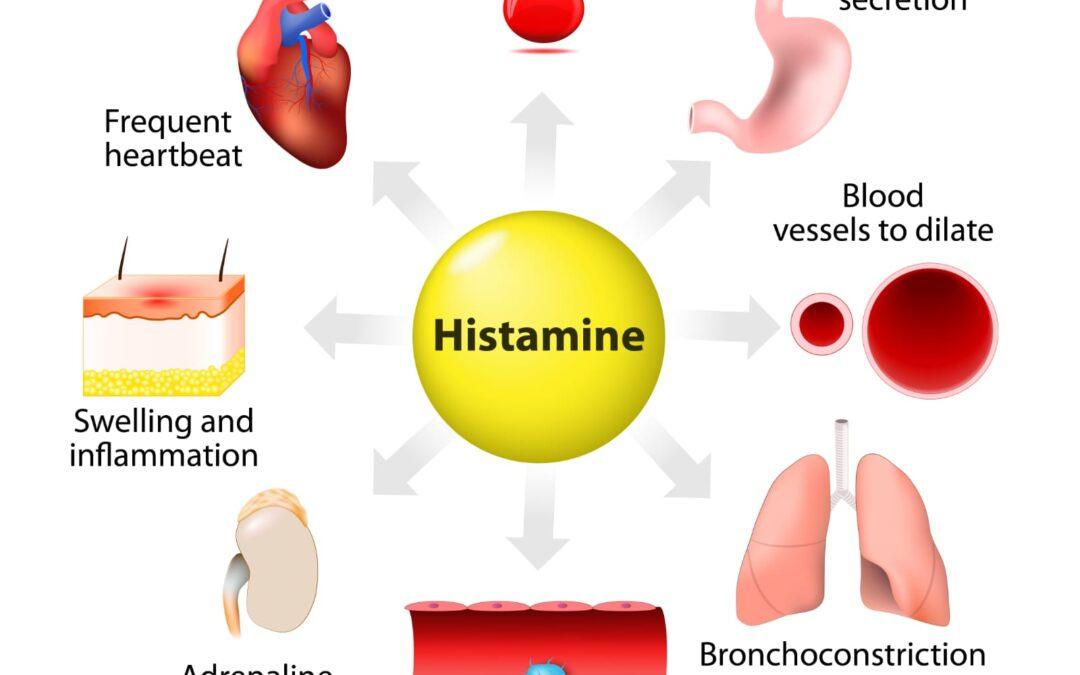 Intoleranța la histamină la copii